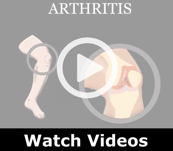 Play disease videos