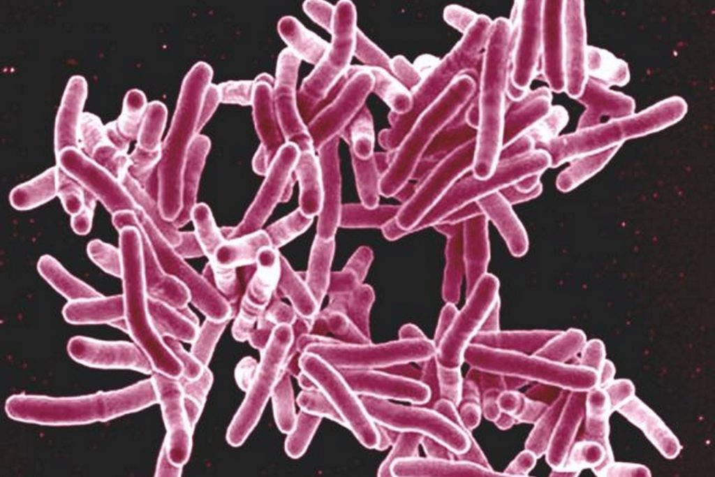 Tuberculosis Management