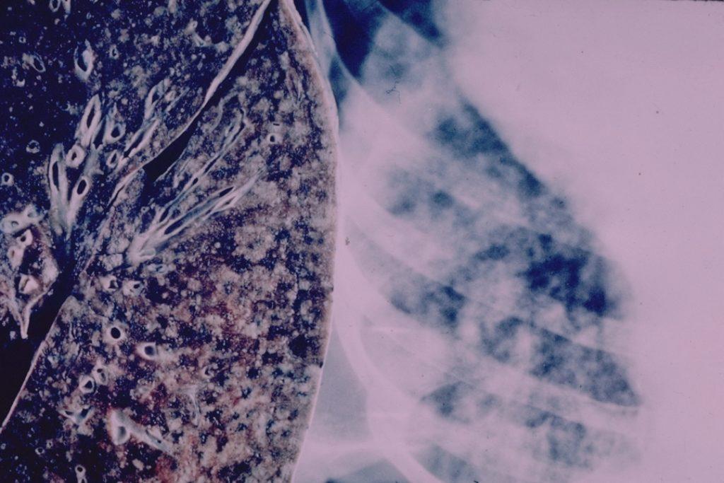दवा प्रतिरोधी टीबी