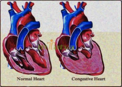 CHF_overview_heart