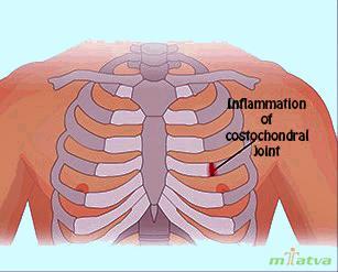 Costochondritis overview