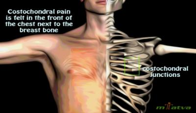 Costochondritis symptoms