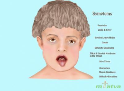 Diptheria symptoms