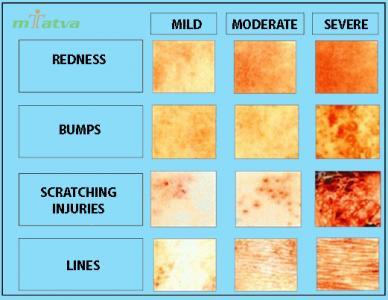 Eczema Watch out