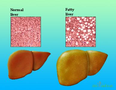 Fatty Liver Disease overview