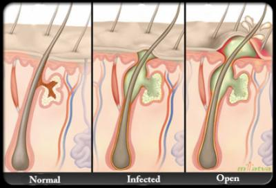 Causes image for Abscess