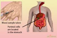 Diagnosis of PA