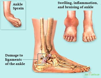 Ankle sprain overview