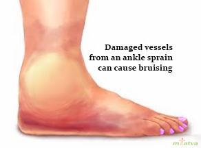 Bruising ankle