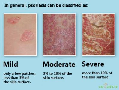 Psoriasis watch out