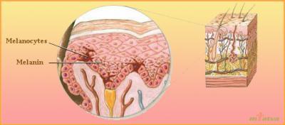 Leukoderma causes