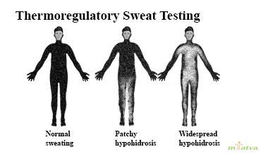 Thermoregulatory sweat test