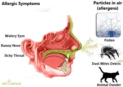 Rhinitis symptoms