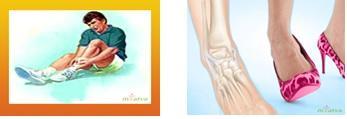 merged image of Ankle sprain