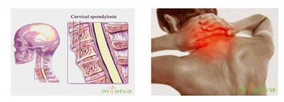 merged image of neck pain