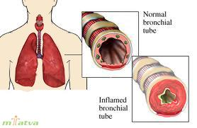 Bronchitis overview image