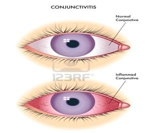 Conjunctivitis overview image