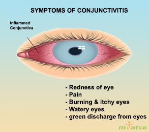 Symptoms of conjunctivitis