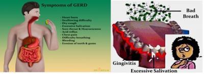 GERD symptoms IMAGE