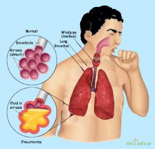 Pneumonia overview image