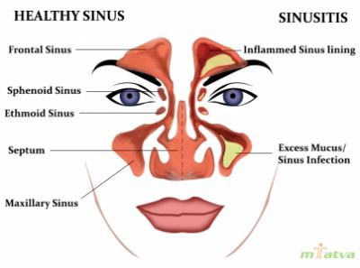 Sinus overview